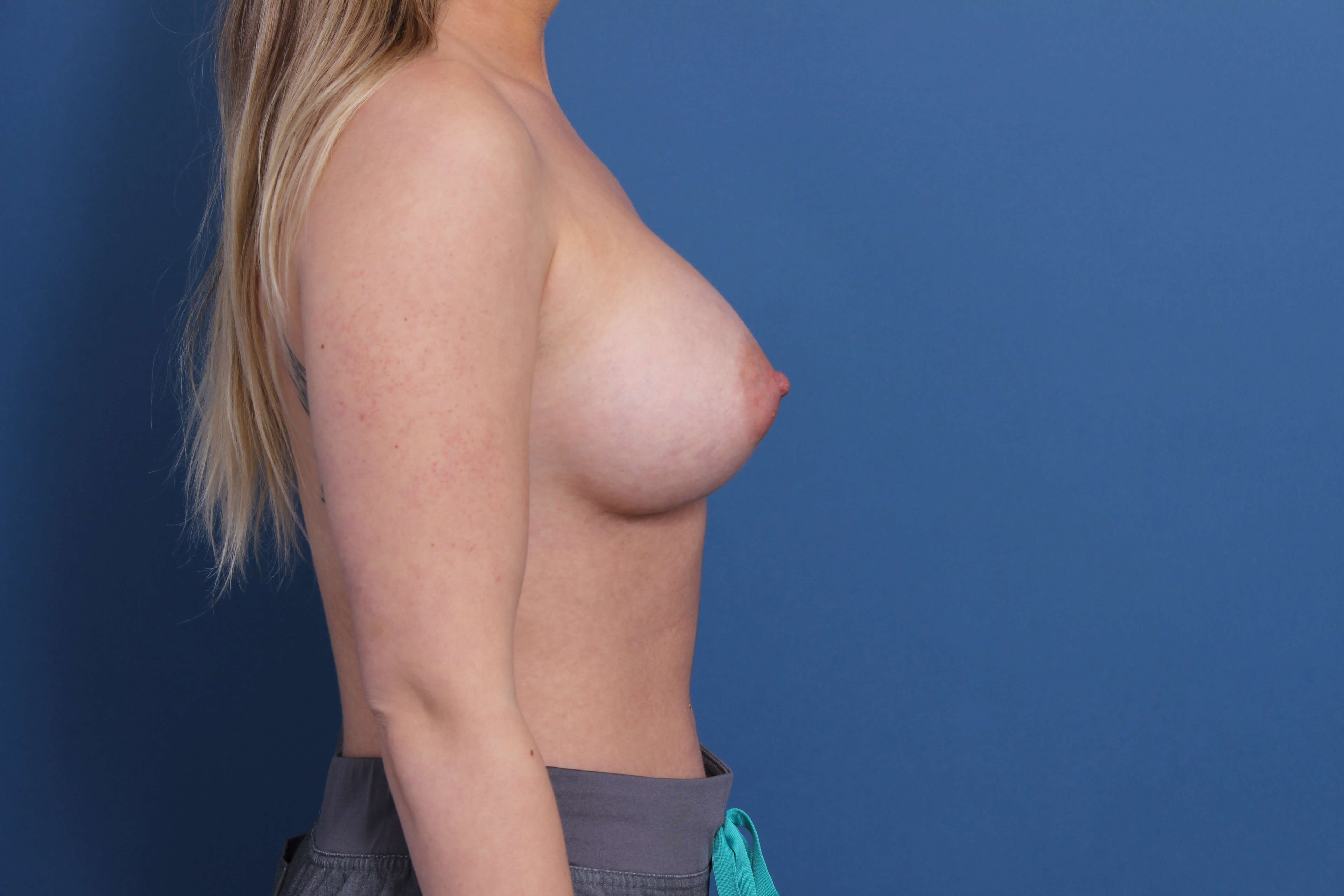 Gummy Bear Breast Augmentation After