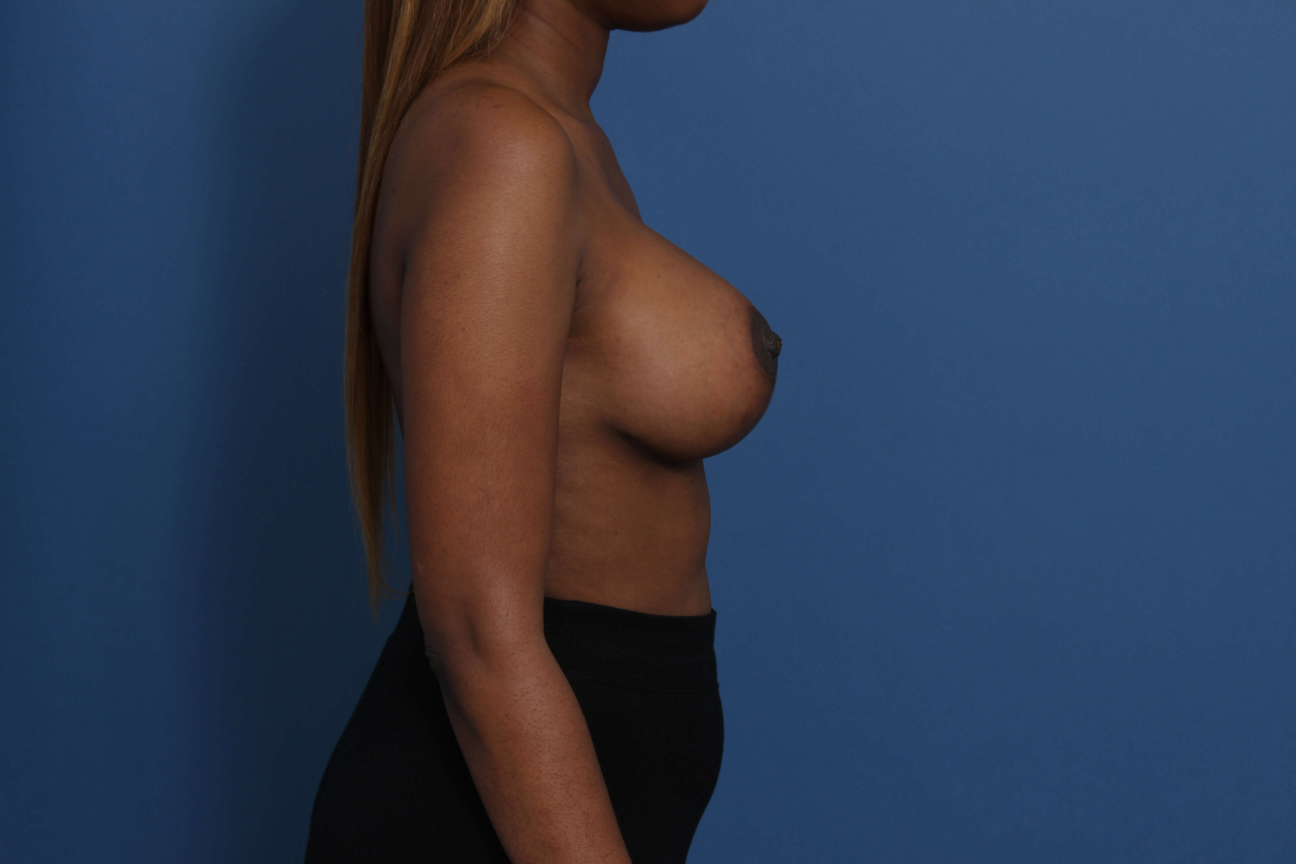 Newport Beach Mastopexy-Aug After