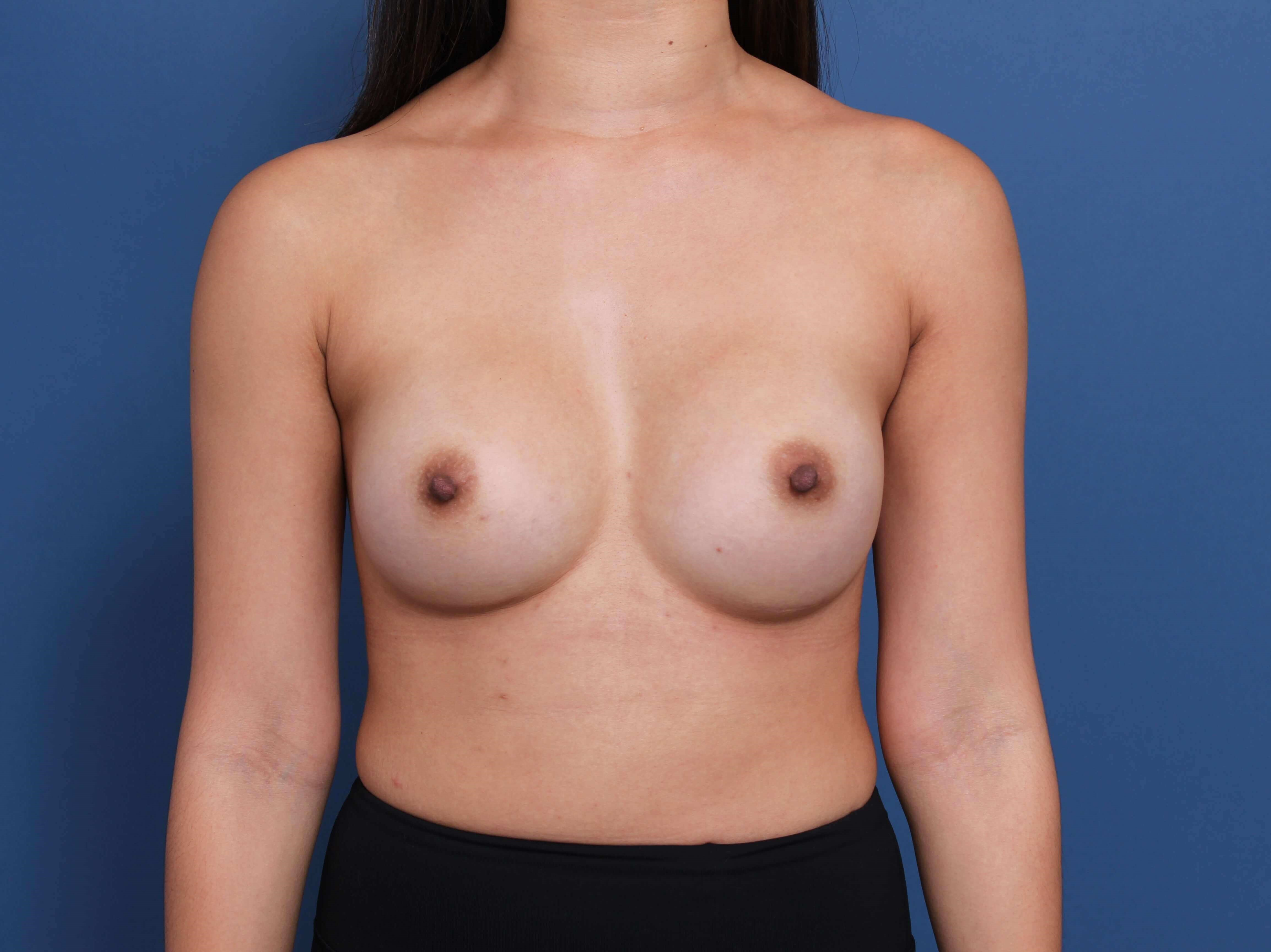 High Profile Breast Implants After