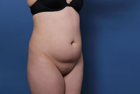 Liposuction Newport Beach Before