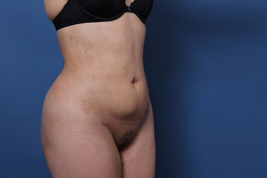 Liposuction Newport Beach After