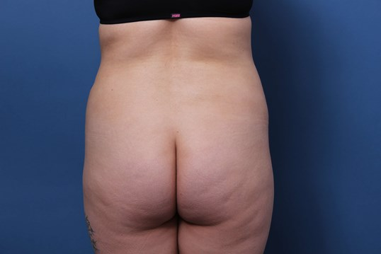 Liposculpture Newport Beach Before