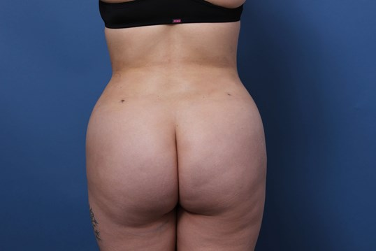Liposculpture Newport Beach After