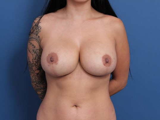 Breast Revision Orange County After