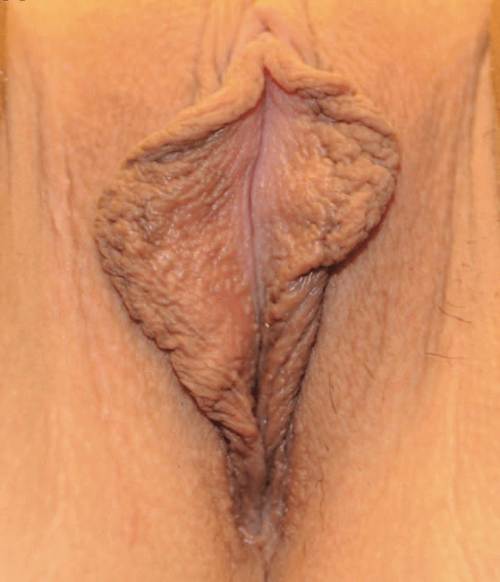 Newport Beach Labiaplasty Before