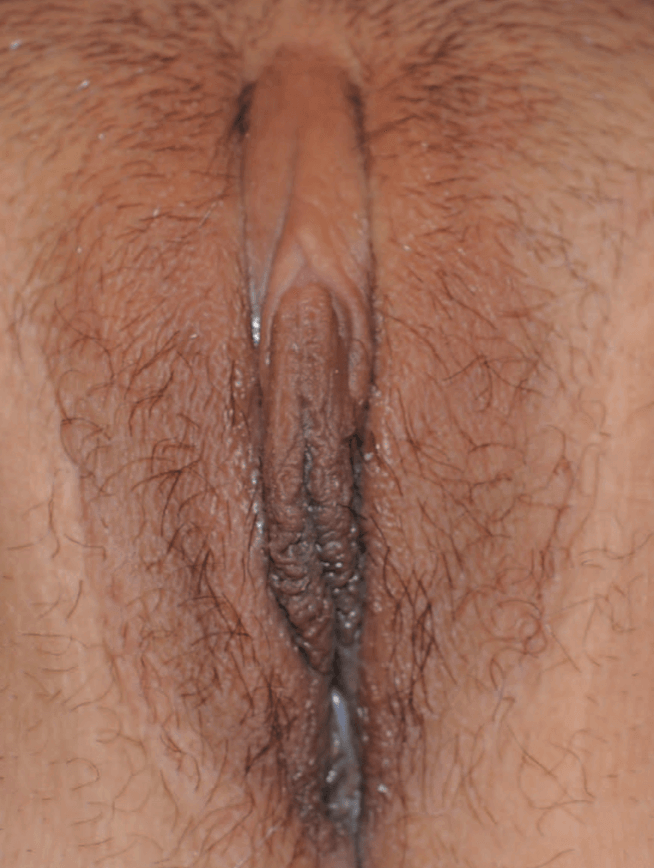 Newport Beach Labiaplasty After