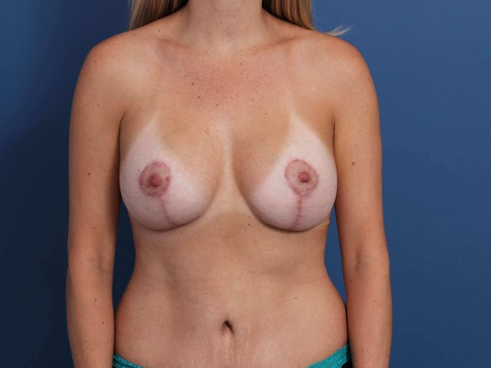 Mommy Makeover Newport Beach After Breast Augmentation-Lift