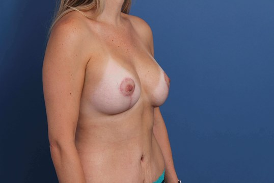 Mastopexy Augmentation After 385cc Breast Implants
