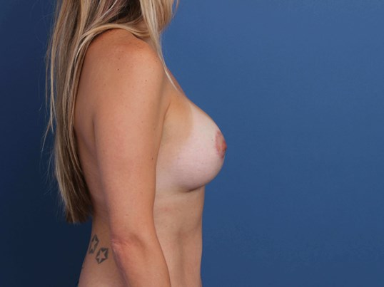 Breast Enhancement Surgery After Mastopexy-Augmentation