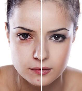 Skin Comparison